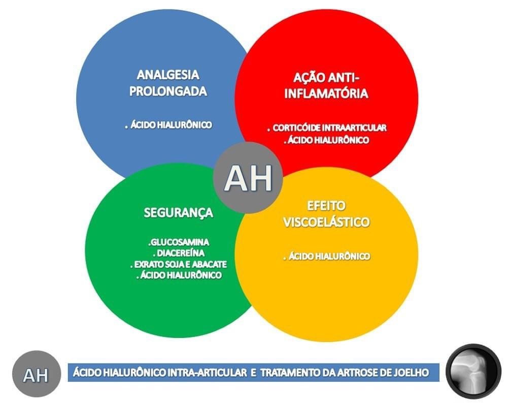 artrose de joelho e ácido hialurônico