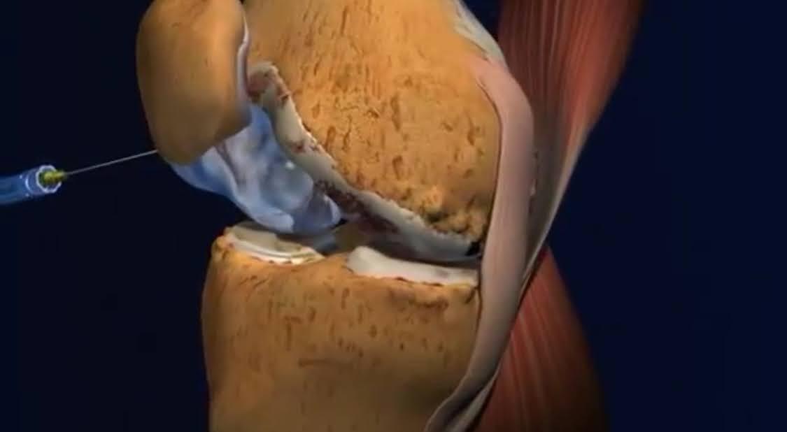 ácido hialurônico e artrose de joelho