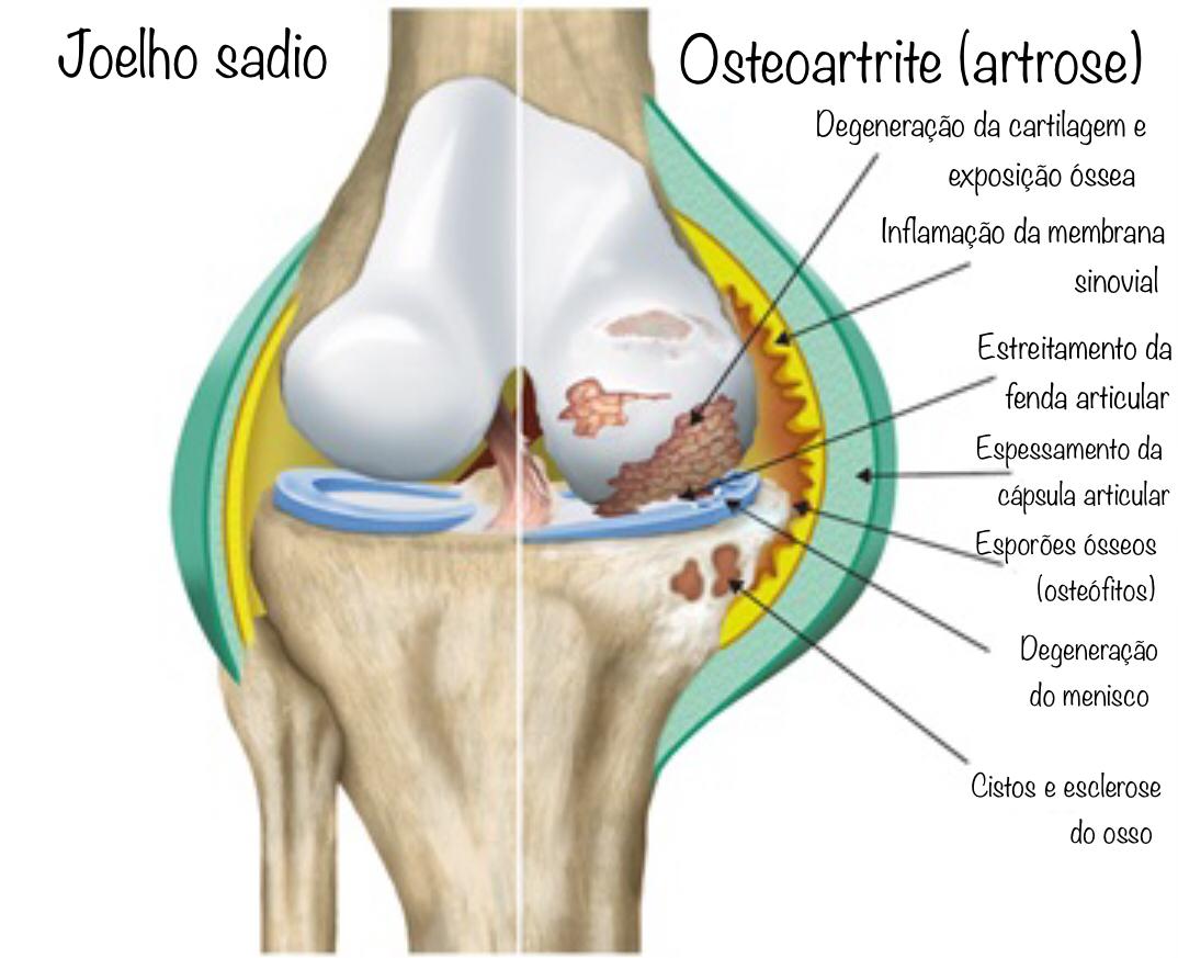 o que é artrose