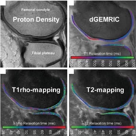 artrose e ressonância magnética