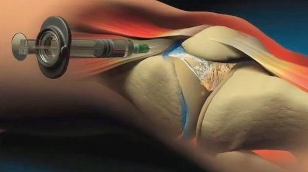 infiltração articular artrose de joelho