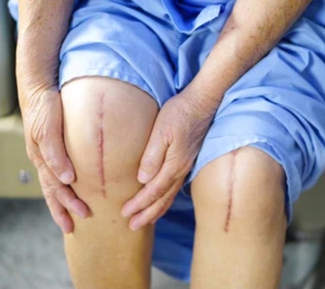 cirurgia prótese de joelho