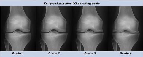 graus de artrose de joelho